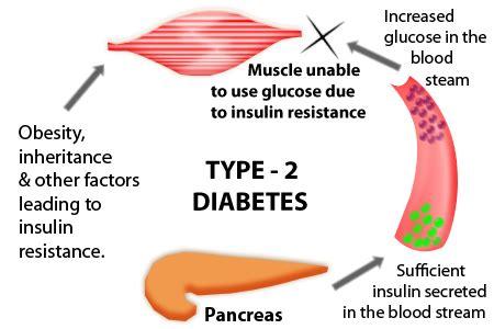 Scientific research on type 1 diabetes